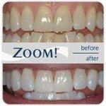 @zoomwhitening's profile picture on influence.co