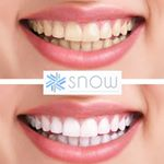 @snowteethwhitening's profile picture