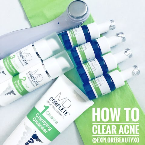 @explorebeautyxo's cover photo for 'Brandbacker Review: MD Complete Acne-Clearing System'