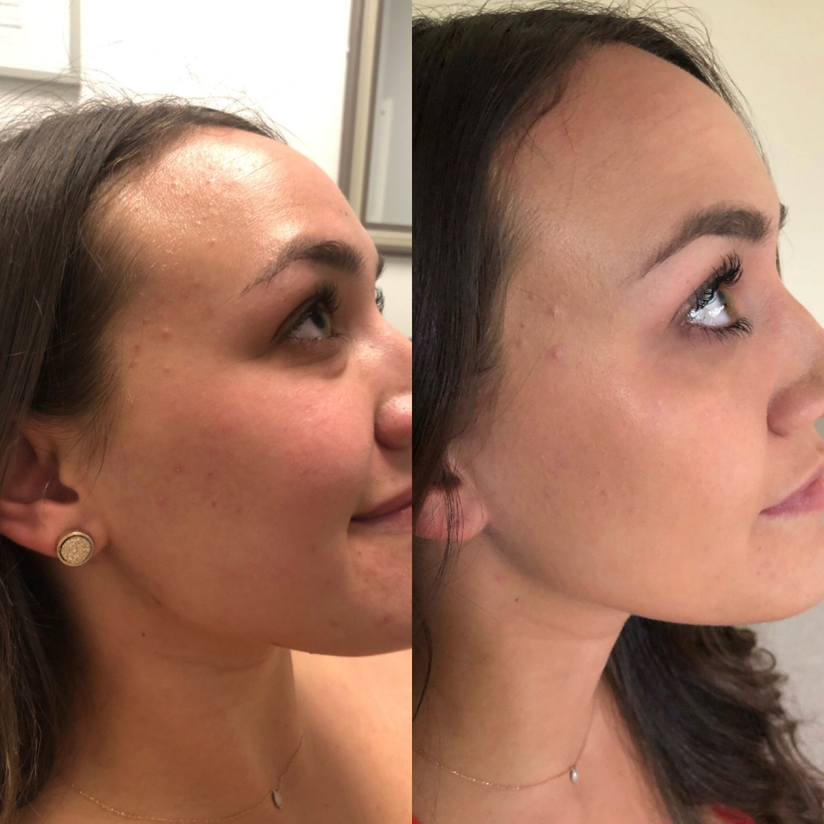 @kait_yoniski's cover photo for 'Amazing Dermal Infusion Results by The  Bowtox Boutique'