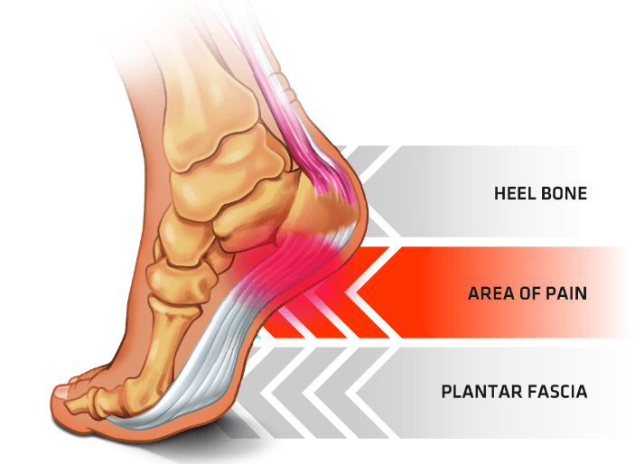 @aimee_the_magician's cover photo for 'How to Deal with Plantar Fasciitis whilst Playing Football'